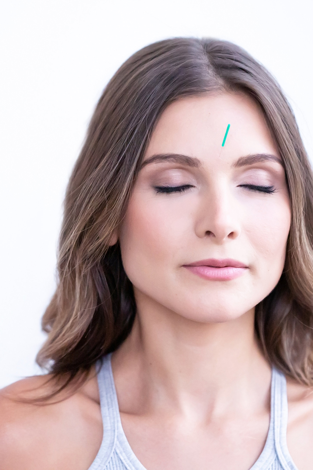 toronto facial rejuvenation acupuncture